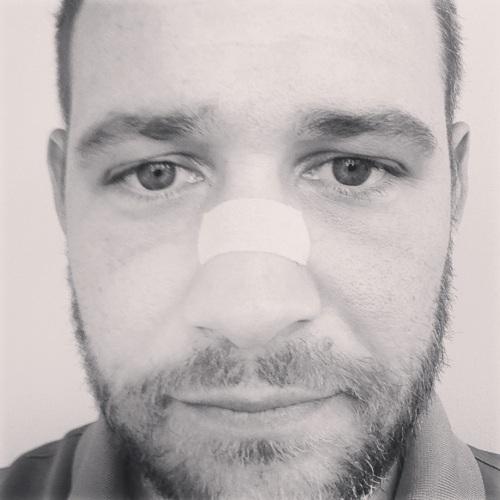 Kinesio Tape as a Breathe Right Strip