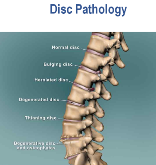 Disc Pathologies